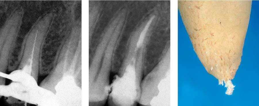 root canal debris