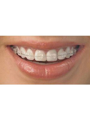 Canadian Orthodontics Brilliance Crystal Clear Self-Ligating Bracket System