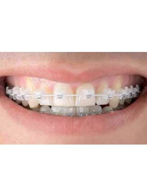 Chirpans orthodontics Radiant Aesthetic Bracket System