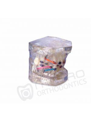 Metro Orthodontic Patient Education Model