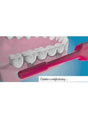 TePe Implant Brush