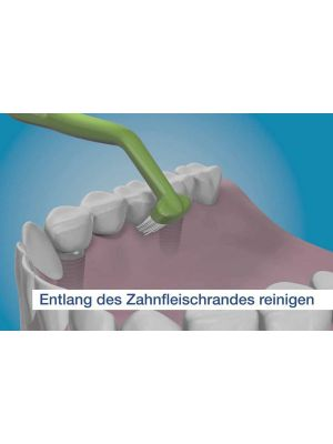 TePe Implant Care Brush