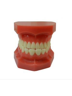 LD Implant Model With Bridge And Caries (LD-085)