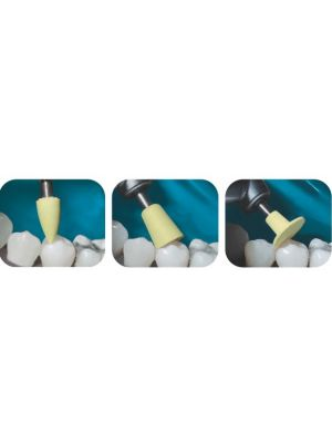 Medicept Dental Blaze Aesthetic Composite Polishing Kit