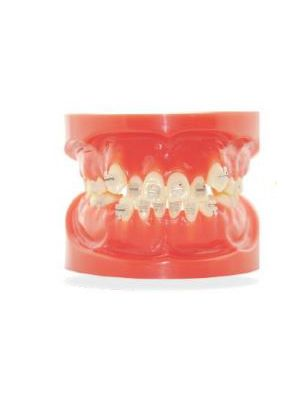 Ortho One MX Active Ceramic Brackets