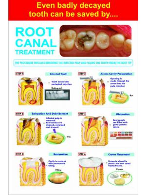 Root Canal Treatment - Dental Poster