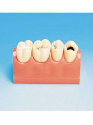 Top Dent 4 Piece Study Model