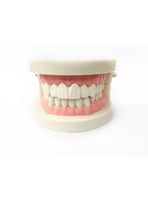 Top Dent Study Model